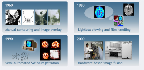 History of hybrid Imaging